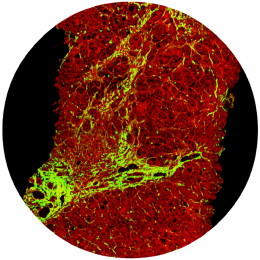 An SHG & TPE scan of an unstained NASH liver tissue sample