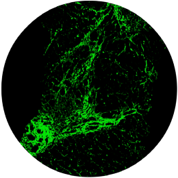 Fibrosis<br/>(collagen fibers highlighted in green segments)