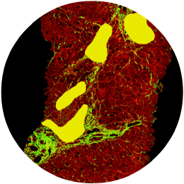 Lobular Inflammation<br/>(yellow segments)
